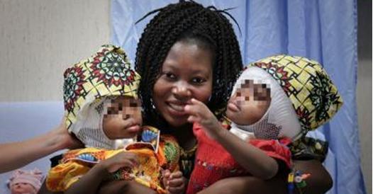 Bambino Gesù, separate con successo due gemelle siamesi erano unite dalla testa